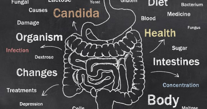 Words of Intestine Condition sketched on a Blackboard